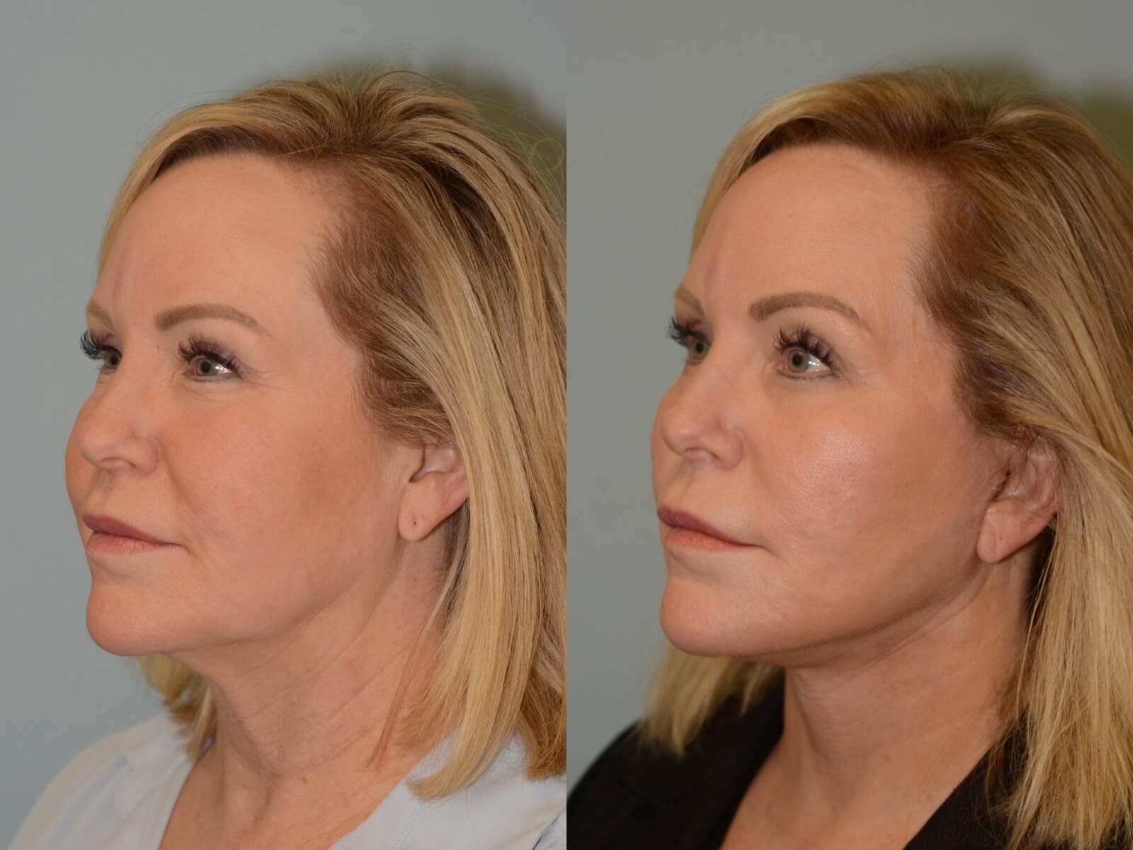 Facelift, Neck lift Before and After