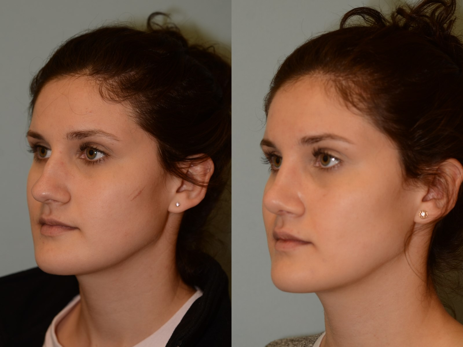 A soft feminine nasal slope Before and After
