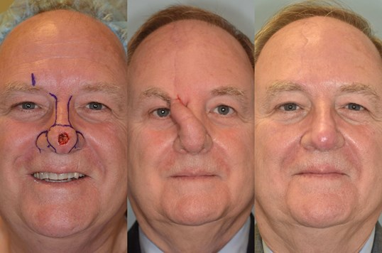 Nasal Reconstruction Before, 1st stage and After