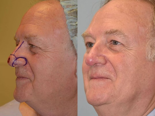 Nasal Reconstruction Before and After