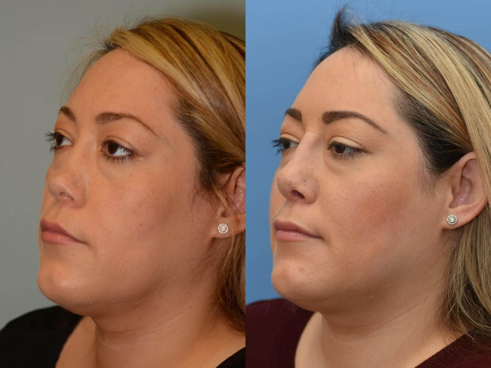 Beautiful to Breathe! Before and After