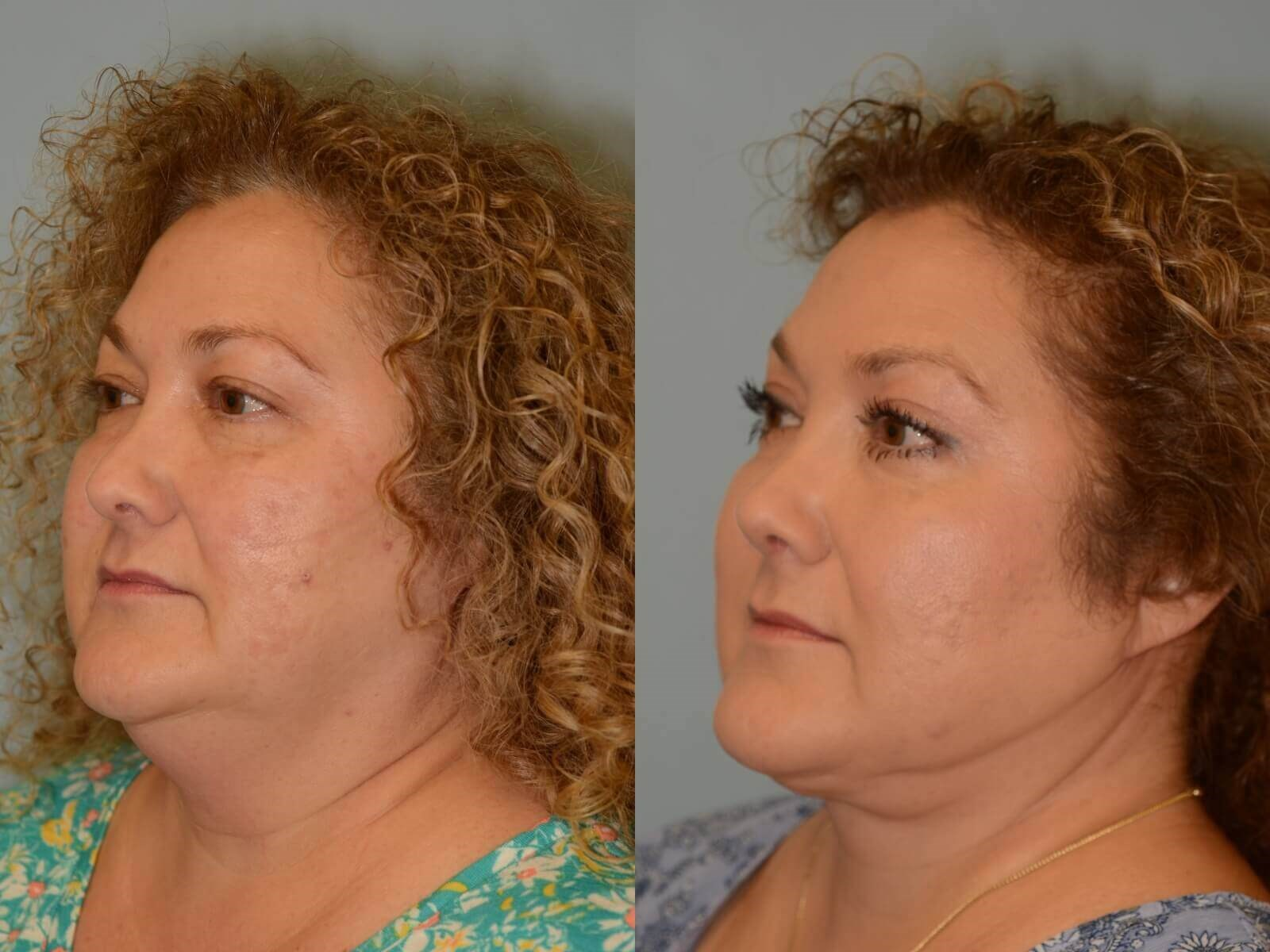 Jaw dropping Jaw definition Before and After