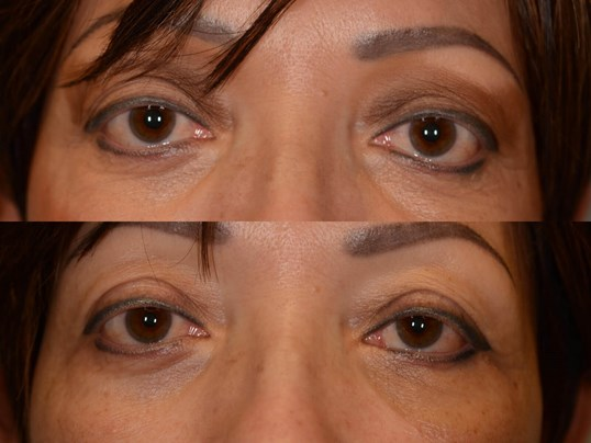 Before And After Orbital Decompression Surgery Sinus Surgery Photos