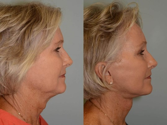 New jaw and neck definition Before and After