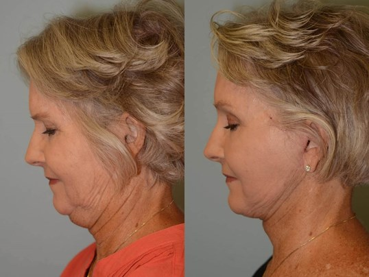 No more double chin! Before and After