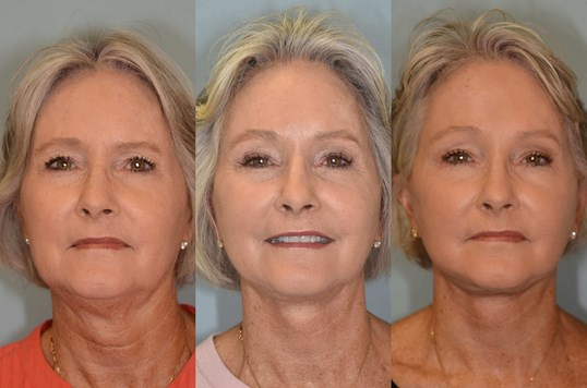 Full Facial Rejuvenation Before and After