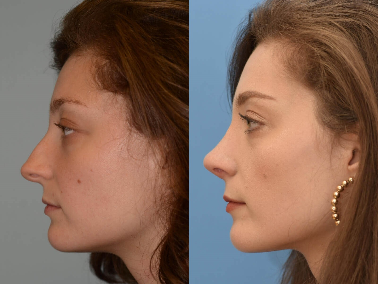 Soft feminine nasal slope Before and After