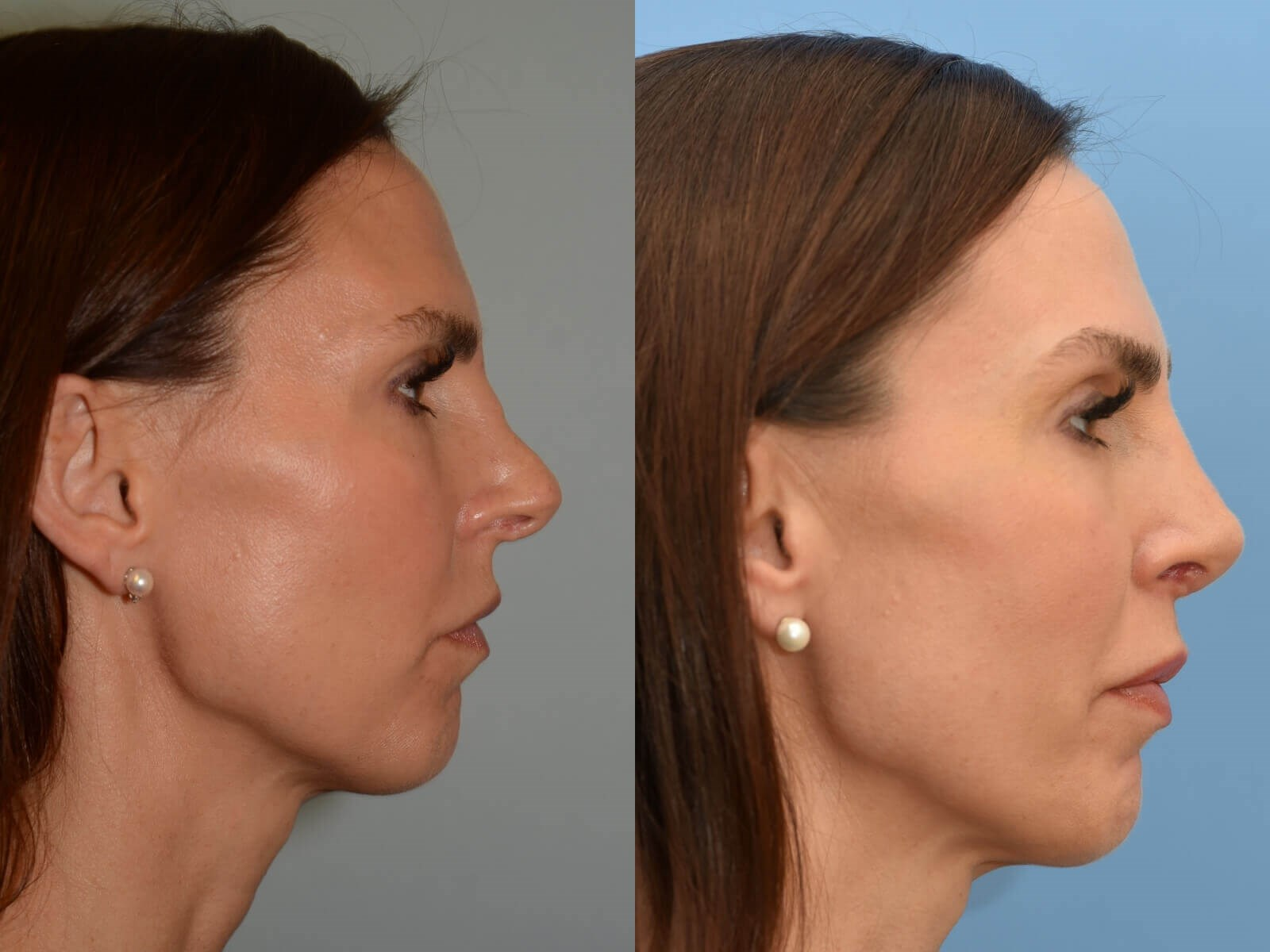 Soft Nasal Slope Before and After
