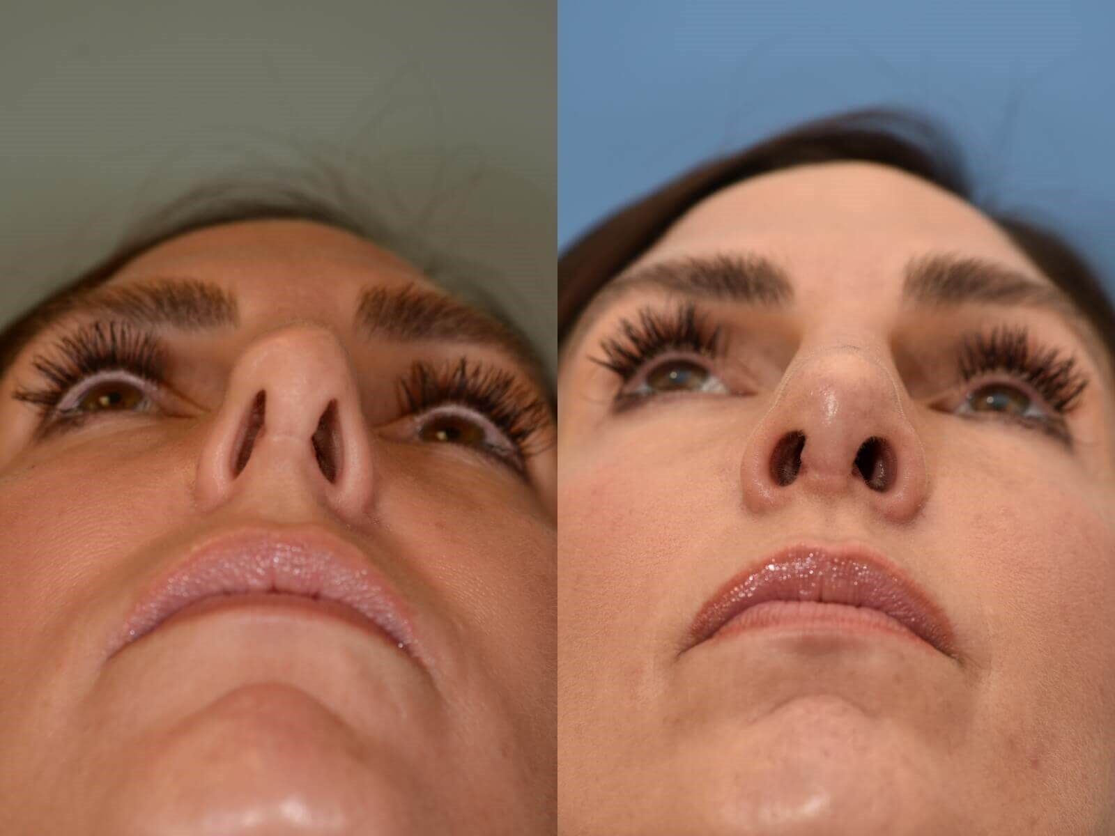 Breathing Beautifully! Before and After