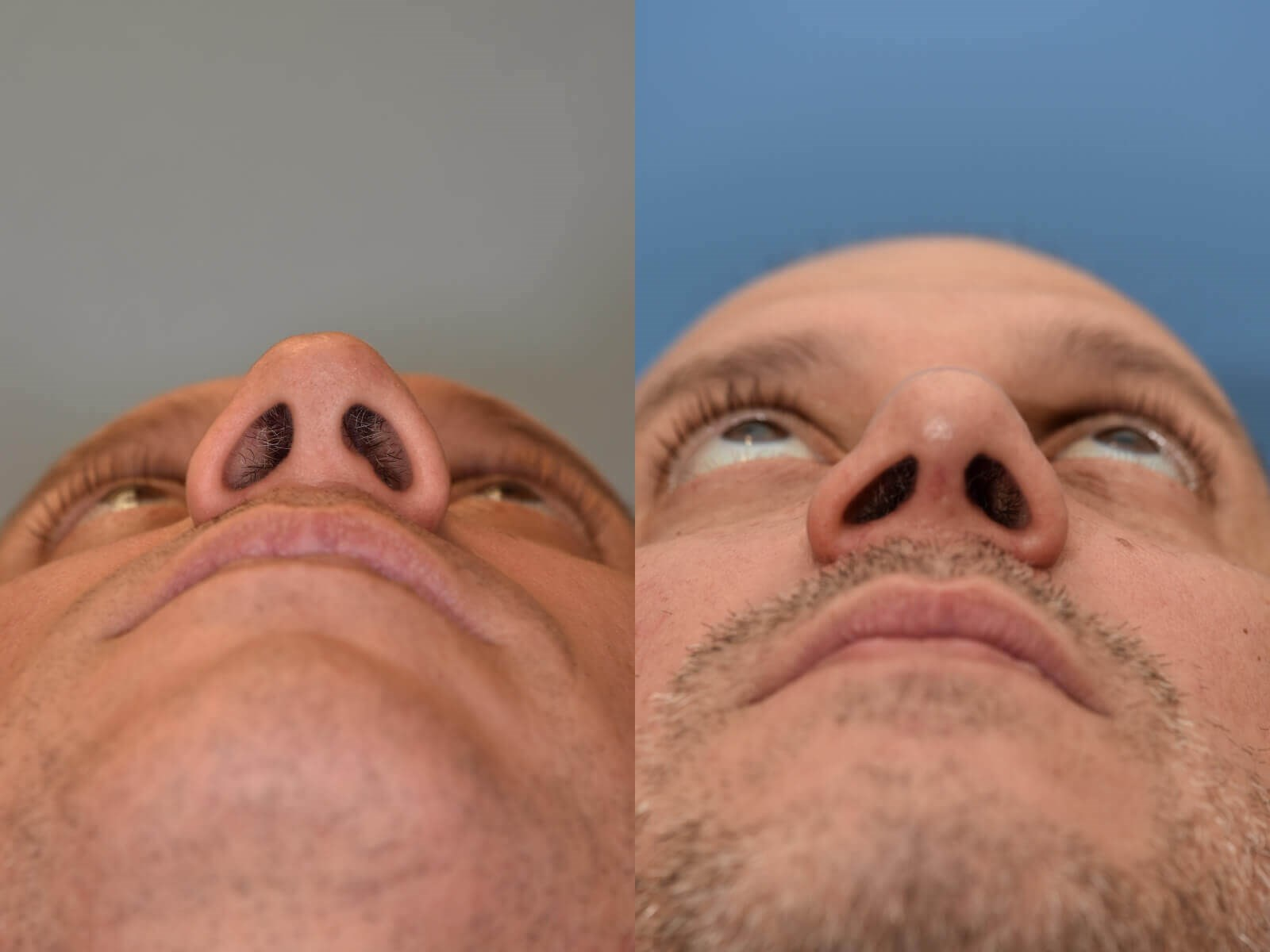 Nasal Valve Collapse Repair Before and After