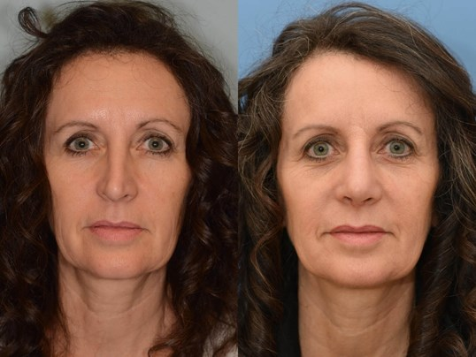 Nasal Obstruction Repaired Before and After