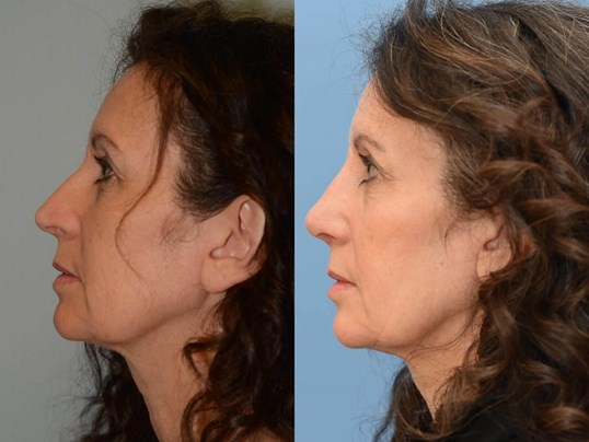 Beautiful Nasal Slope Before and After