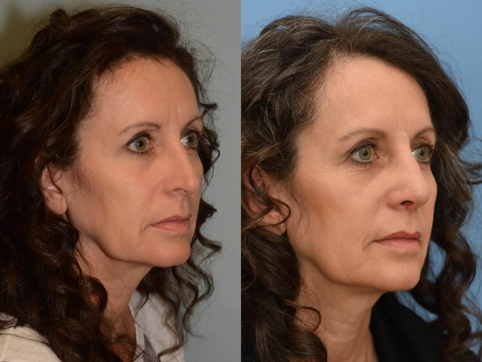 A more balanced nose! Before and After