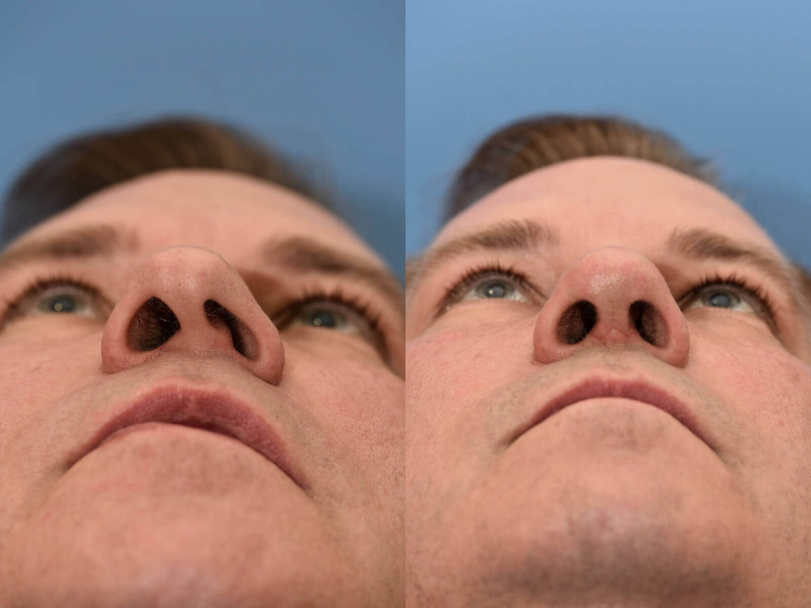 Nasal Valve and Septum Repair Before and After