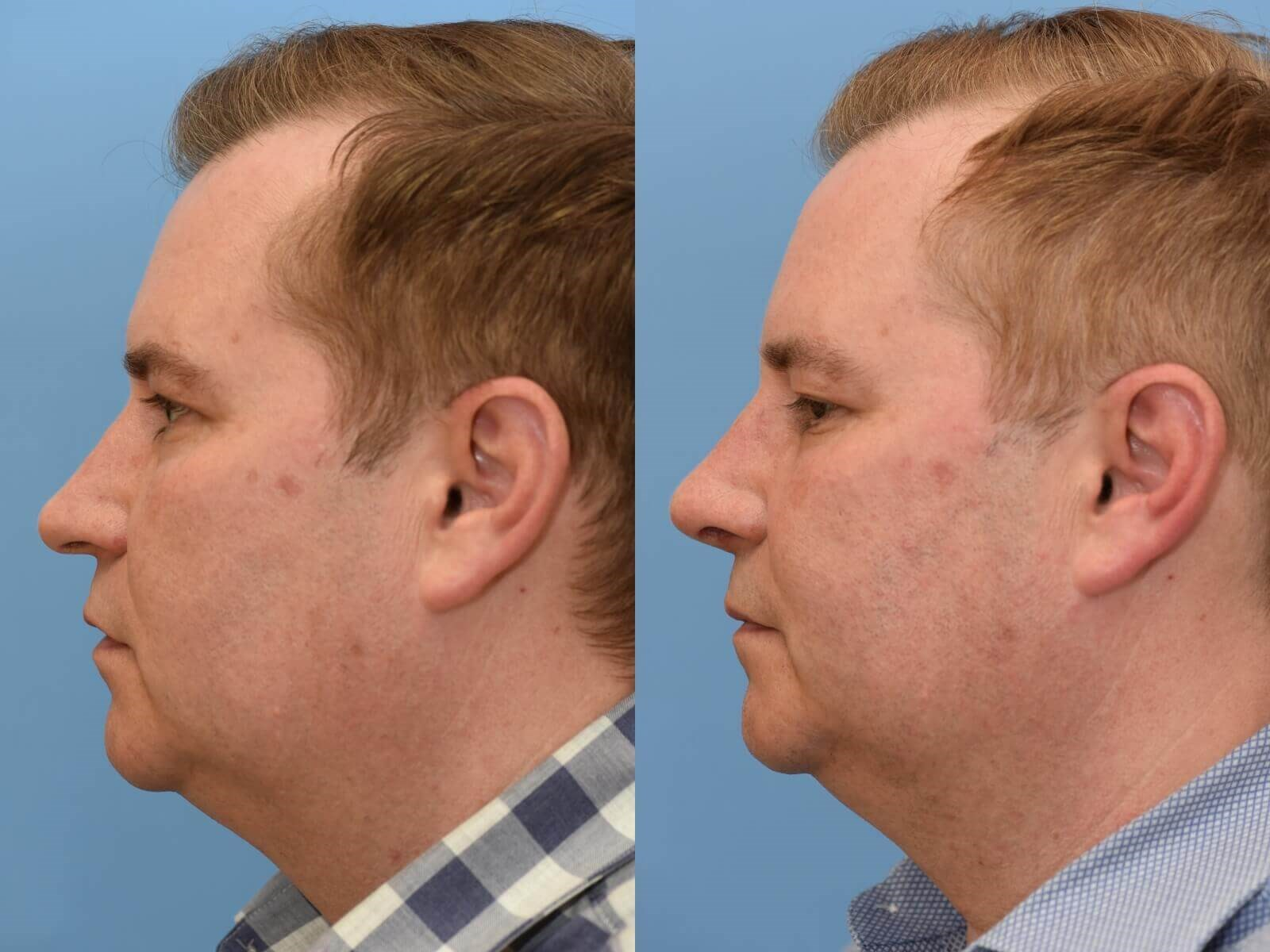Nasal Valve Collapse repaired Before and After