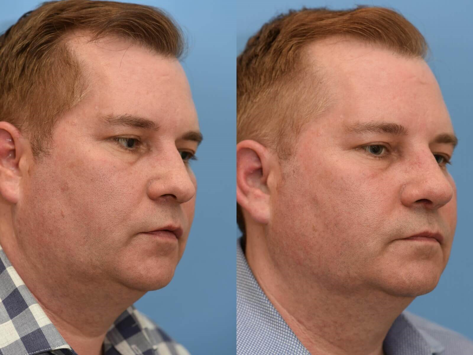 Restored Breathing! Before and After
