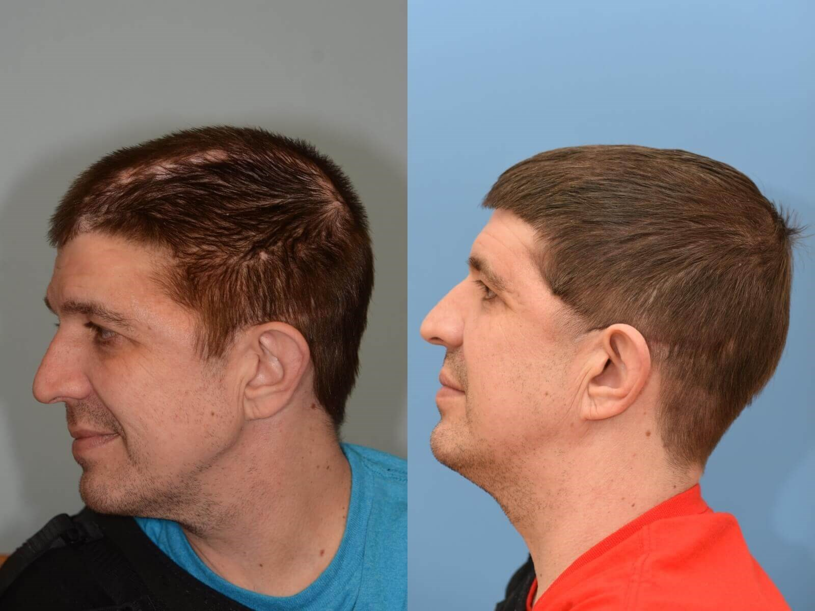 Cranioplasty Reconstruction Before and After