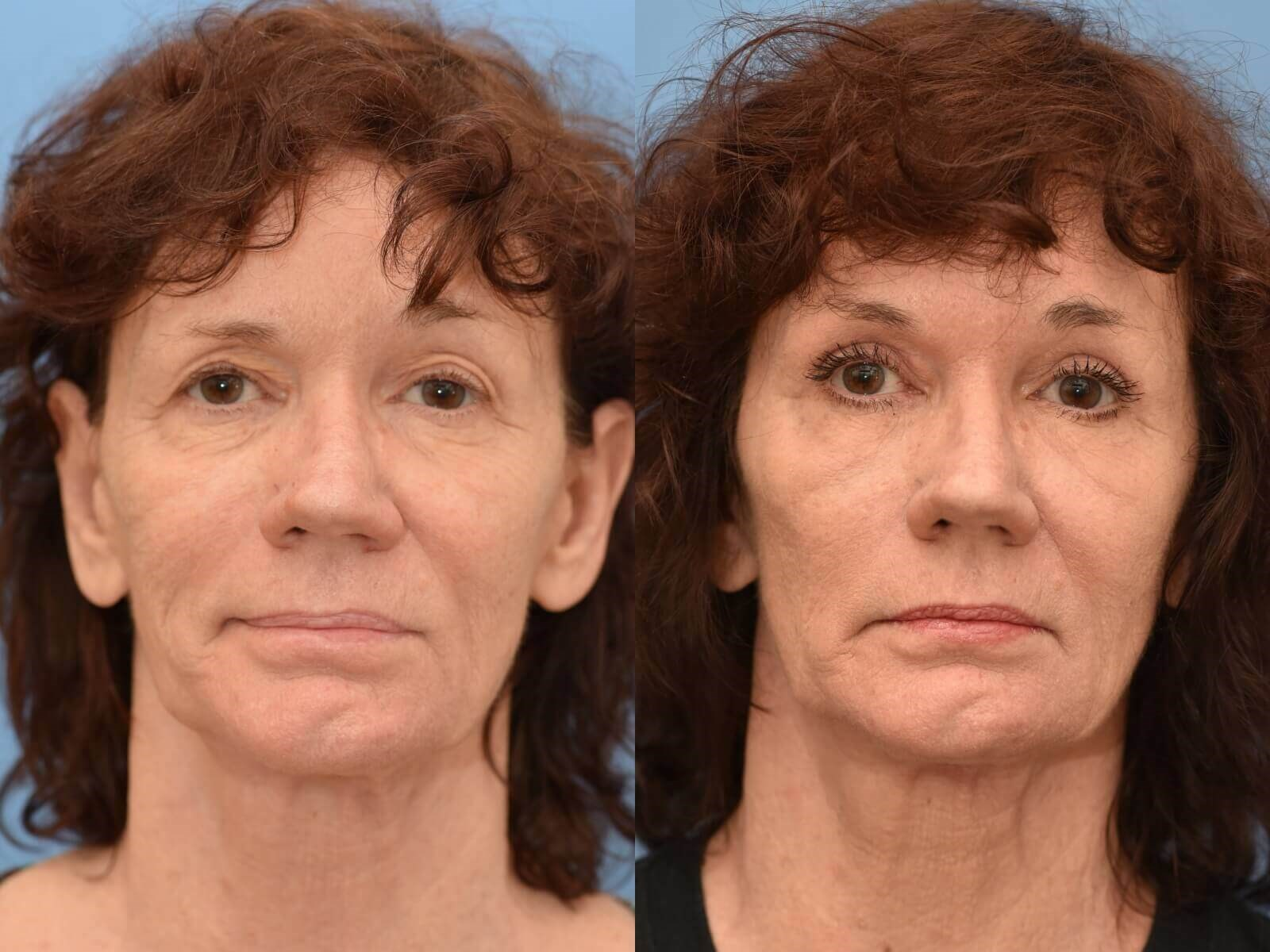 Browlift and Fat Grafting Before and After