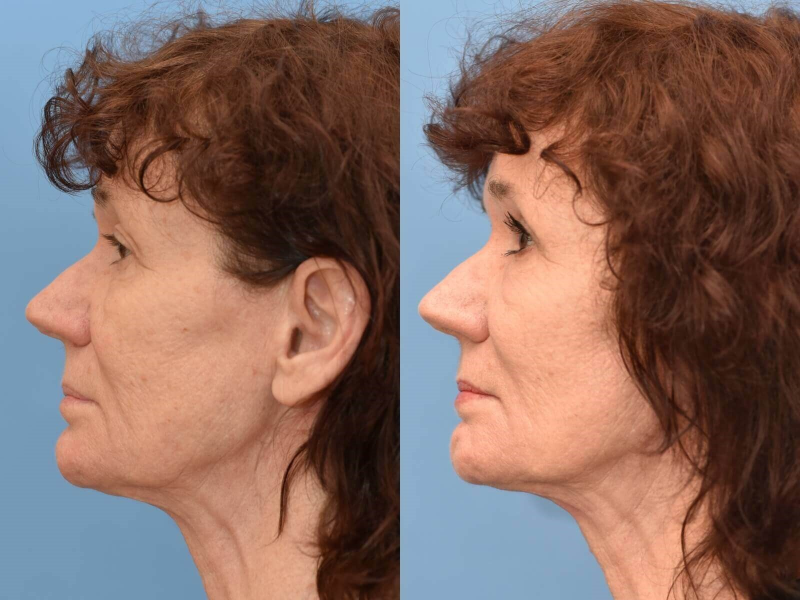 Houston, TX Browlift Before and After