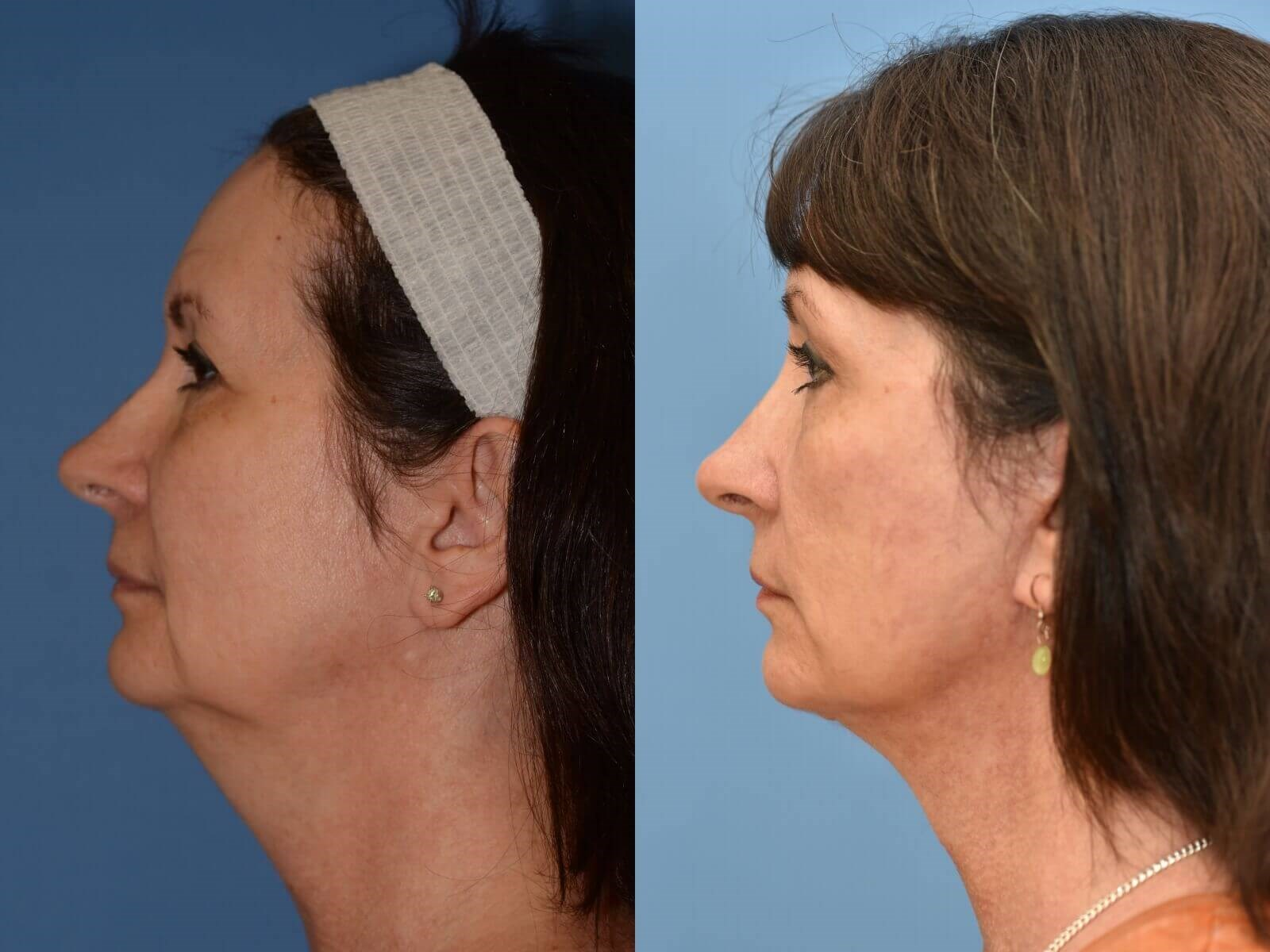 Facelift, Browlift, Necklift Before and After