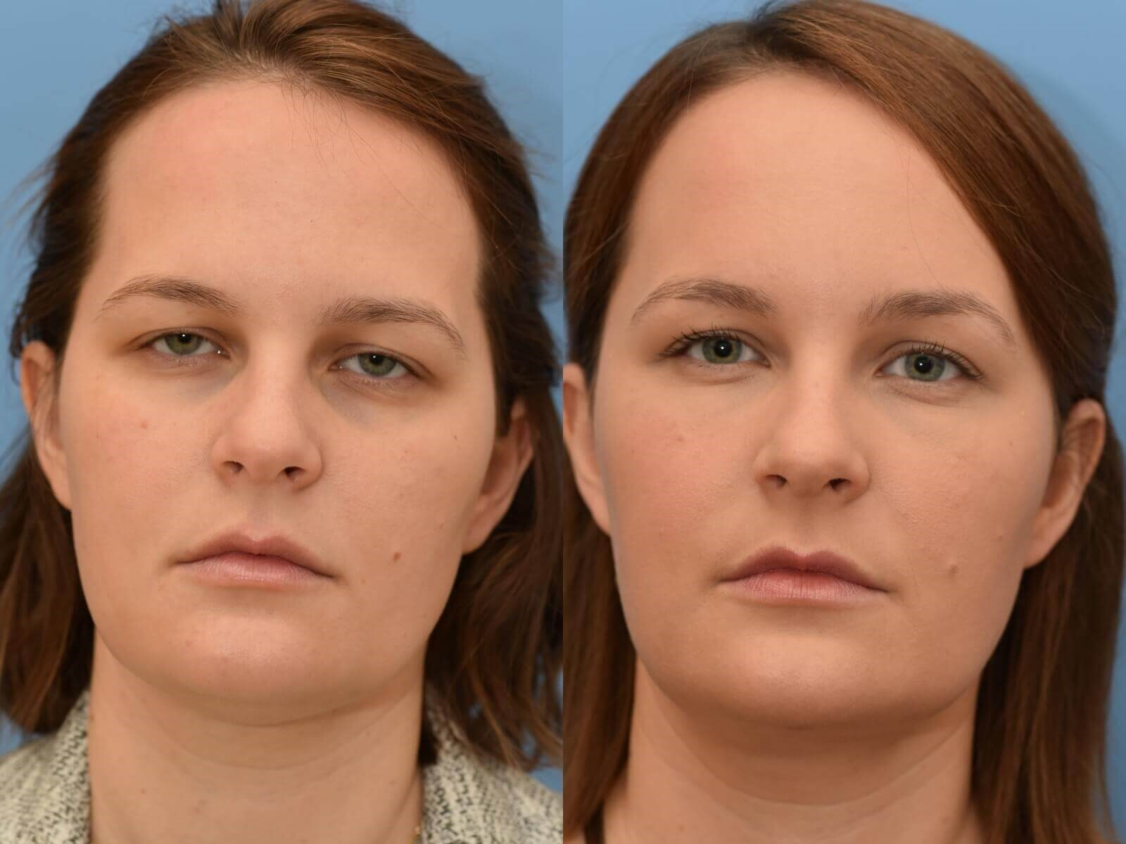 Browlift, Chin Liposuction Before and After