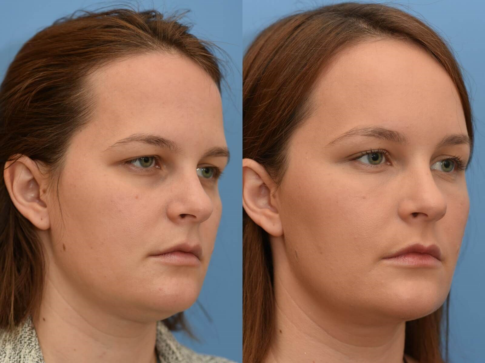 Browlift, Chin Liposuction Before and Afer