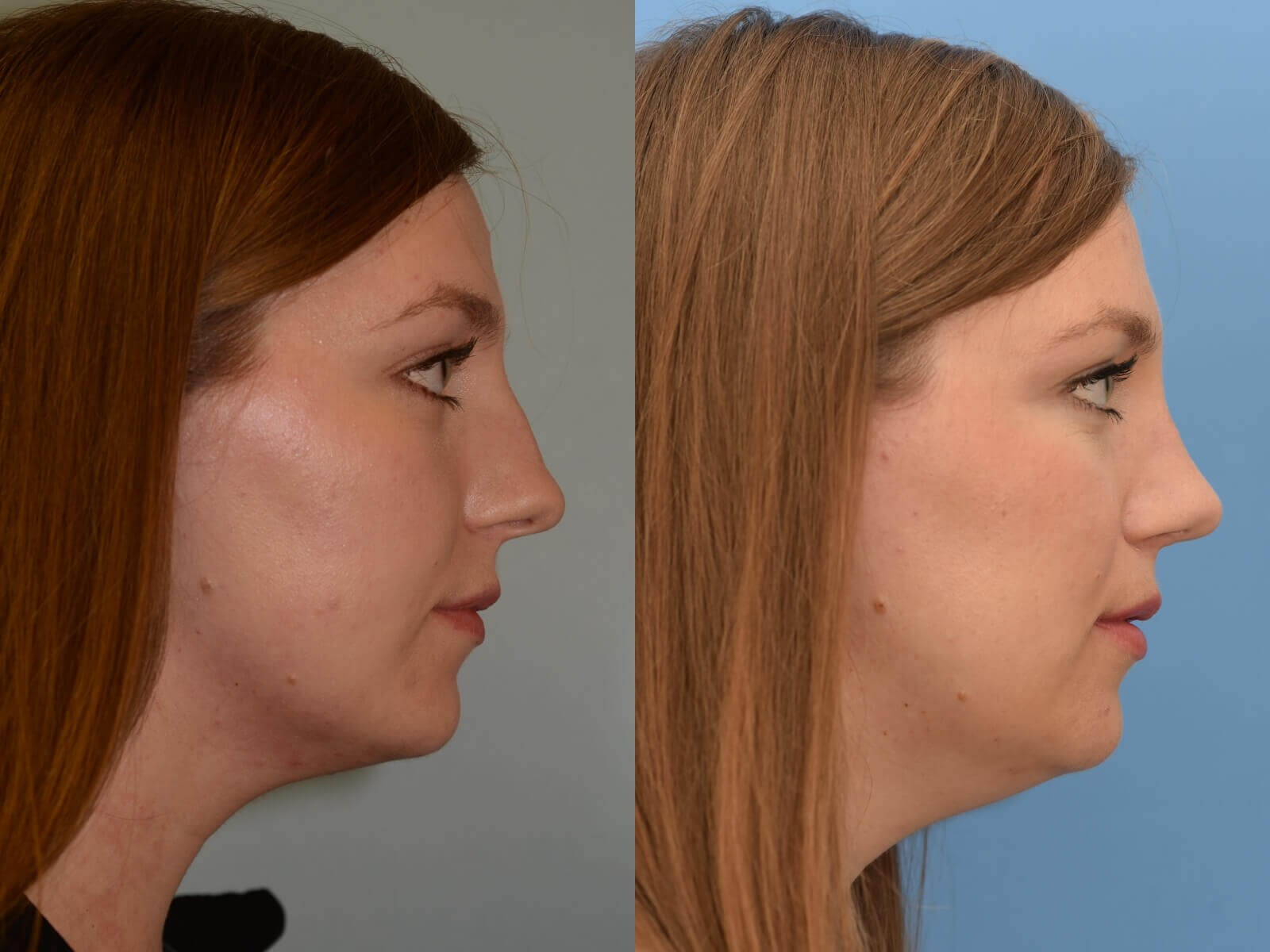 Septorhinoplasty Before and After