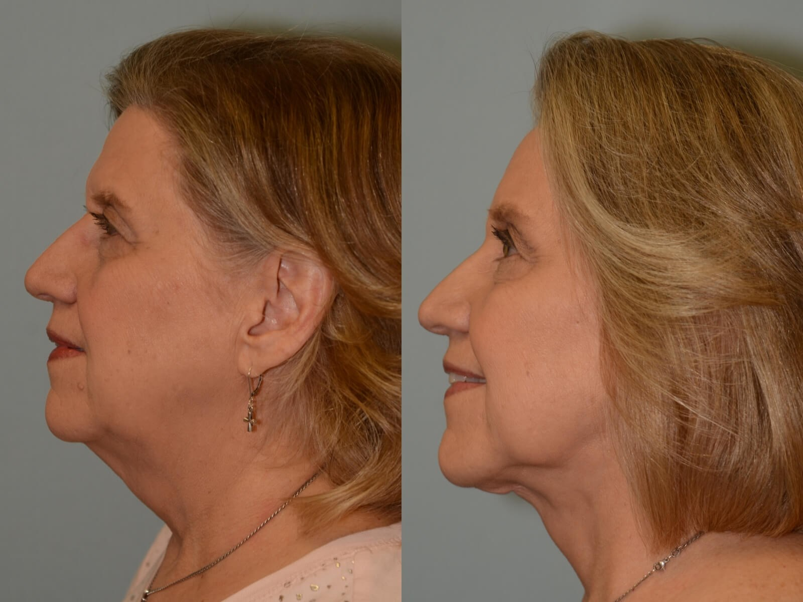 Facelift Profile View After