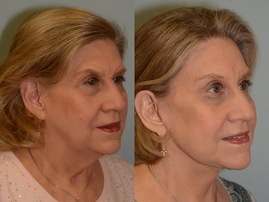 Facelift Profile View Before